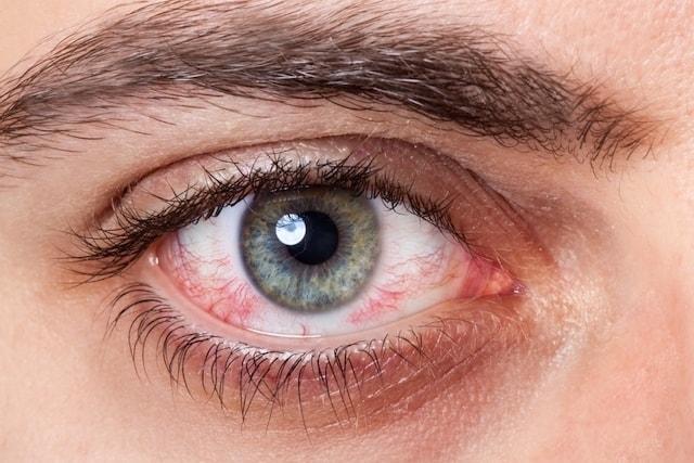 علاج حرقة العين واحمرارها في المنزل - أونيلا