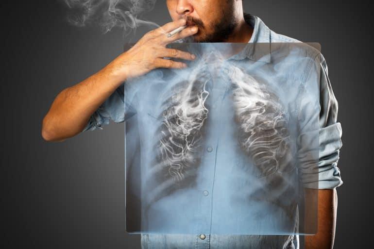 أهم مخاطر التدخين على الصحة