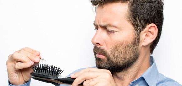 أسباب تساقط الشعر عن الرجال