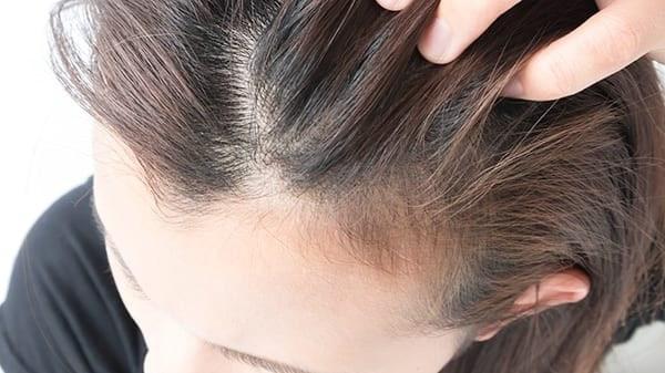 تساقط الشعر الكربي : الاكثر شوعياً لفقدان الشعر