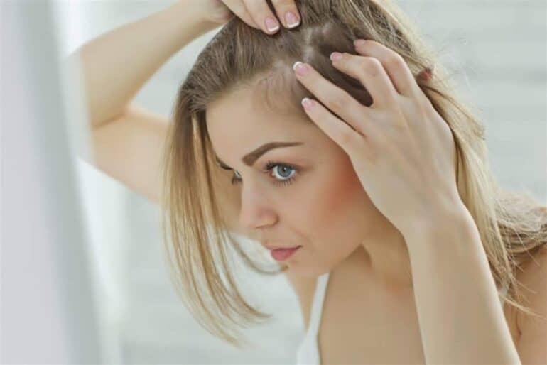 أفضل زيوت طبيعية لعلاج الشعر