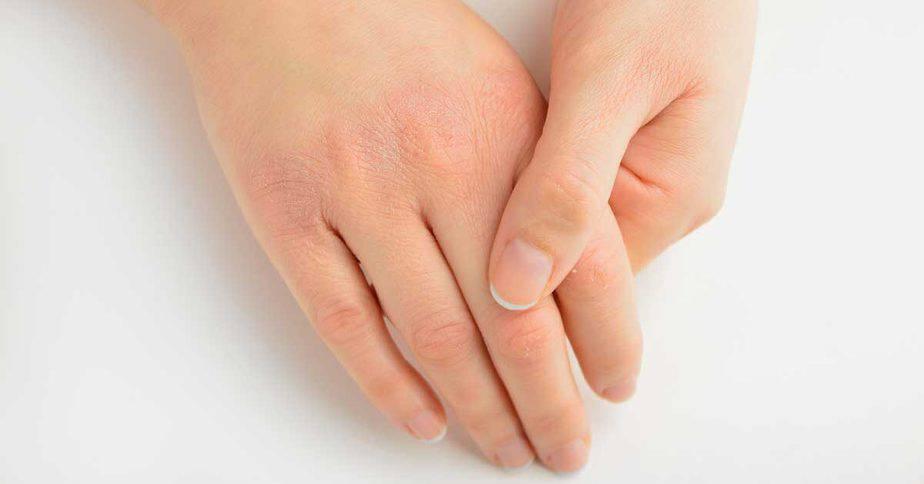أعراض نقص فيتامين e - أونيلا