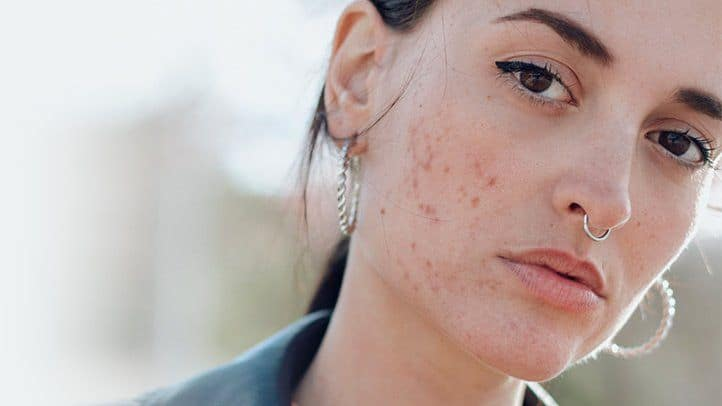 why youre breaking out and how to banish blemishes